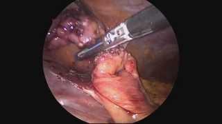 Laparoscopic Appendectomy at The Mount Sinai Hospital