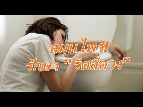 แก้ไข homeopathic สำหรับ thrombophlebitis