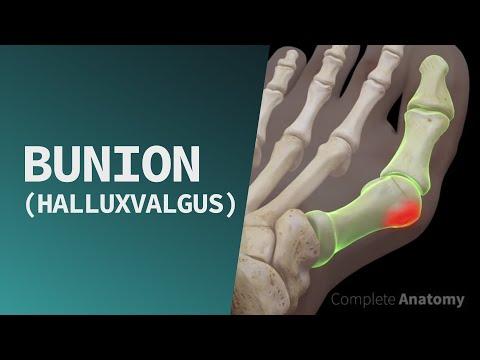 osteopath az artrózis kezelésében)