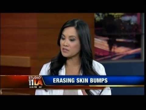 "Video ""Erasing"" Milia and Skin Bumps - Dr. Sandra Lee on Studio 11 LA"