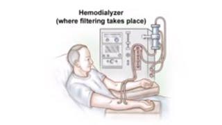 Dialysis Access and Fistula Procedure