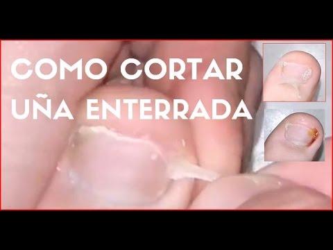 El tratamiento de las uñas en los pies por el bigote de oro