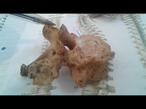 Articulaciones Tuberculosis x-ray