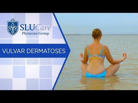È possibile prendere il sole a eczema