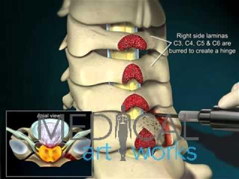 Die Massage schejnoj die Bereiche der Wirbelsäule