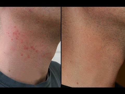 Video HOW TO CURE RAZOR BURN BUMPS ON NECK & LEGS!