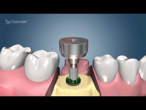 Dental Implant Procedure - Two Stage