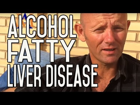 Video Alcohol and Fatty Liver Disease: Symptoms, Cause, Effect, Outlook