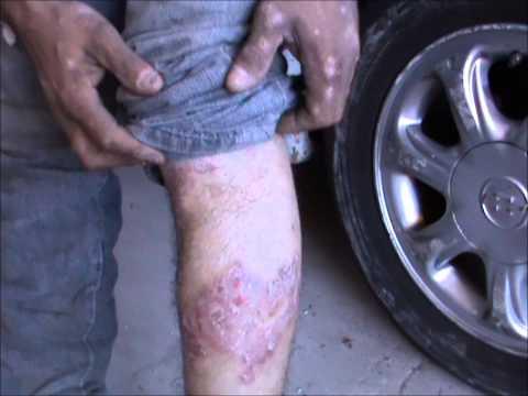 Dermatite de atopic no recém-nascido do que tratar