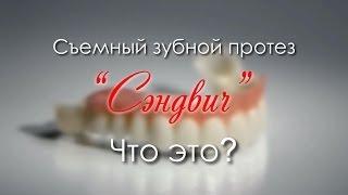 «СЭНДВИЧ» - съемный зубной протез нового поколения.
