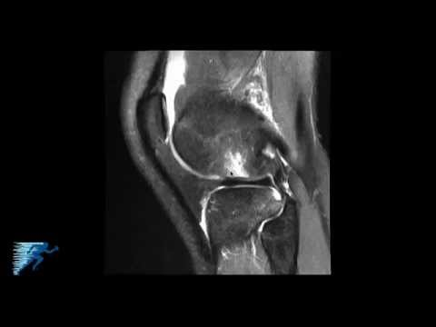 How to Read Knee MRI of ACL Tear | Anterior Cruciate Ligament Injury