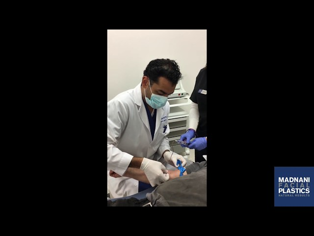 PRP and Microneedling for hair Restoration