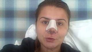 Teodora's Beverly Hills Nose Job: Day 5