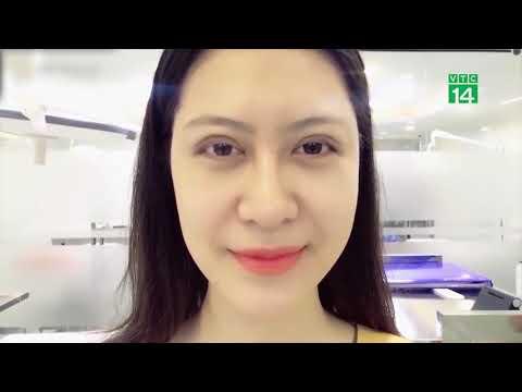 [Cảnh Báo] Dr.Hải Lê tiếp nhận 1 ca cắt mí tại spa bị gãy kim trong mắt gây nguy hiểm