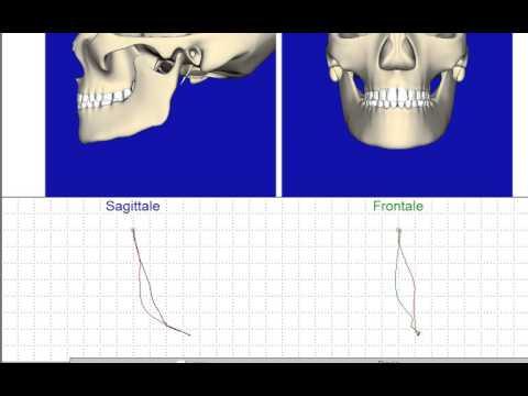 Rimedi popolari per osteocondrosi vertebrale