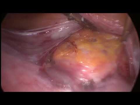 Rahim Sarkma ameliyatı-Laparoskopik Histeropeksi
