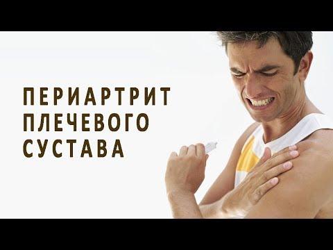 Что такое периартрит плечевого сустава и как его лечат?