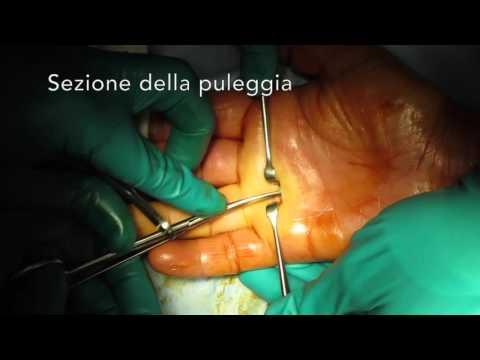 Deformazione di età di piede arthrosis
