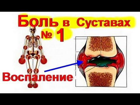 Болят суставы что делать? Лечение суставов № 1 Артрит. Артроз. Как лечить суставы / ed black