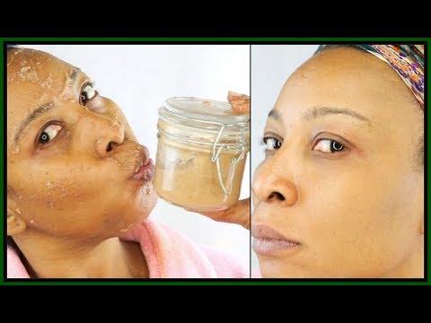 Face mask mula sa yogurt sa pamamagitan ng itim na tuldok ang siyang