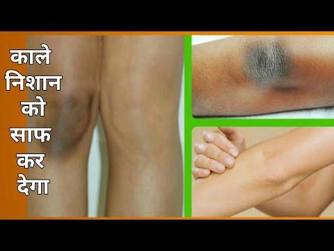 शरीर पर मौजूद काले निशान को ऐसे करें साफ
