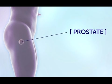 Sperm in the analysis of the prostate