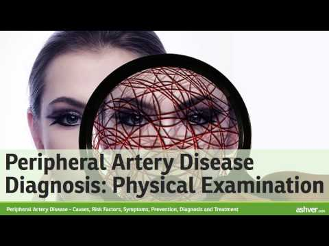 Video Peripheral Artery Disease - Causes, Risk Factors, Symptoms, Prevention, Diagnosis and Treatment