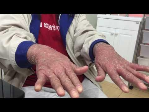 การรักษา neurodermatitis ในสค์