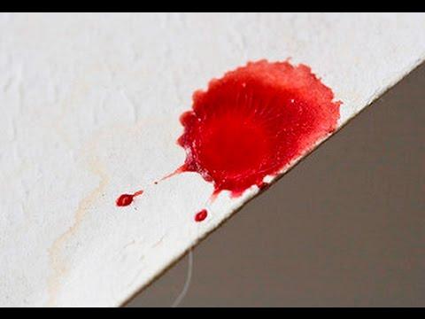 Emulsyon ng pigment spots