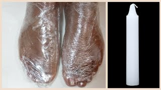In Just 5 Minutes - Get Rid of CRACKED HEELS Permanently |Magical Cracked Heels Wax Treatment