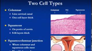 Womens Health Pap Smear and Cervical Dysplasia