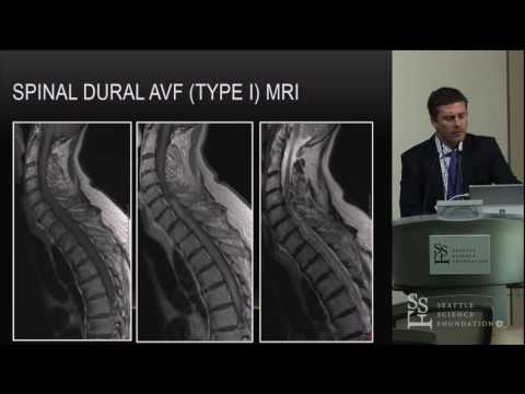 Spinal Vascular Malformations