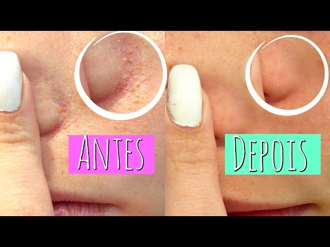 Como limpar os poros