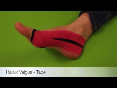 Valgus ความผิดปกติของเท้าที่มีรูปถ่าย