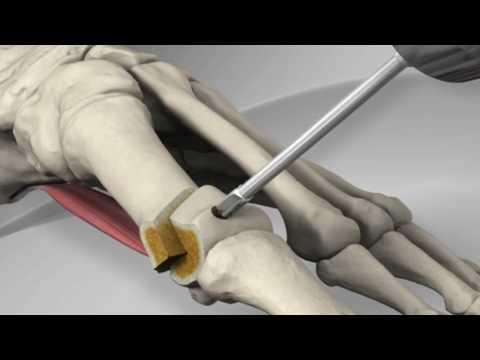 Die Massage der Beine bei der Valgusdeformation