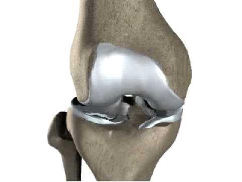 Artrosi deformante del ginocchio trattamenti popolare congiunte