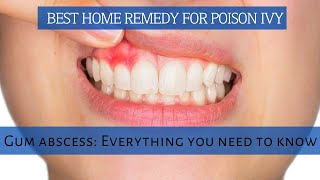 Home remedy for abscess tooth | Gum abscess: Everything you need to know