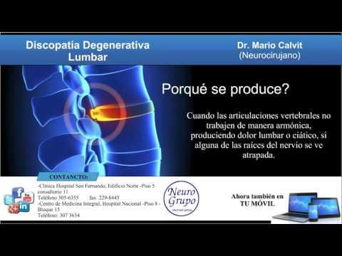 Trattamento di anca coxartrosi 1-2 gradi senza chirurgia
