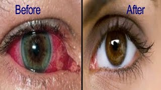 INSTANT CURE FOR EYE PROBLEM REDNESS AND EYE PAIN