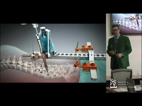 Operacje kręgosłupa przy pomocy robotów