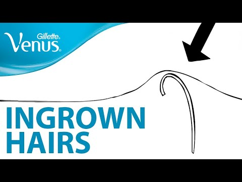 Want To Prevent Ingrown Hairs in 4 Steps? Hair Removal Tips | Gillette Venus
