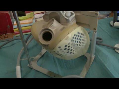 Πρώτη μεταμόσχευση βιο-τεχνητής καρδιάς στην Ευρώπη