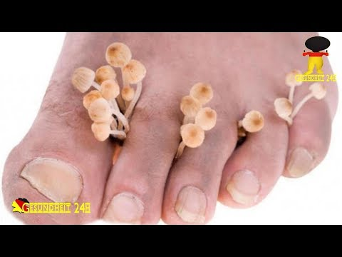 Das Senföl von gribka der Nägel