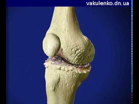 Артрит связки коленного сустава