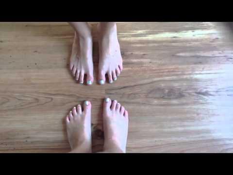 Koślawe zniekształcenie stopy płaskiej