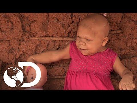 Mujer atrapada en la mente y tamaño de un bebé  | Mi Cuerpo, Mi Desafío l Discovery Latinoamérica