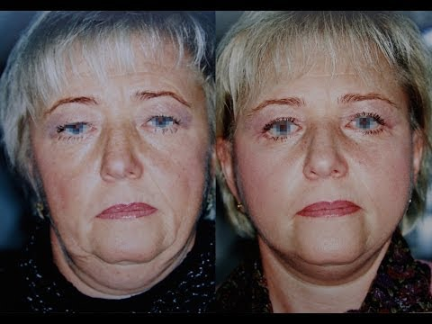 Маски от шелушения кожи вокруг глаз