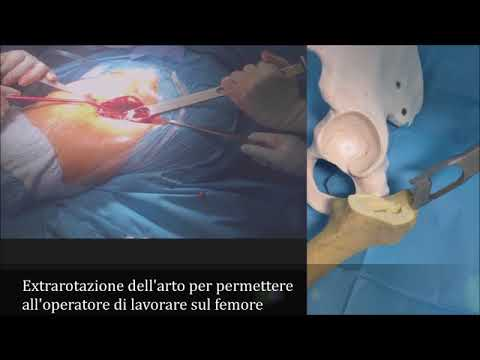 Cervicale osteocondrosi toracica e tachicardia