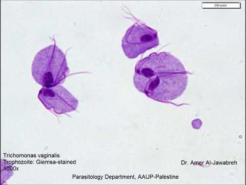 Parazita trematode annak kezelése
