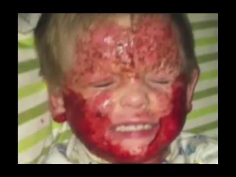 Se lunguento di eczema salicylic aiuta